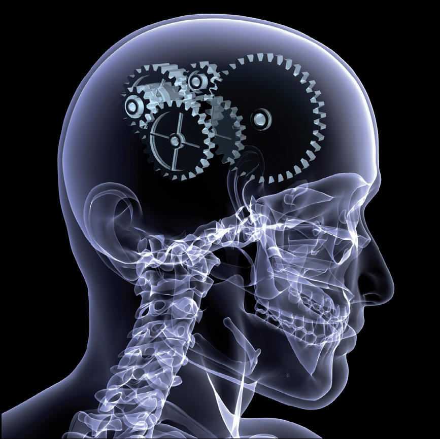 Parkinsonismi atipici
